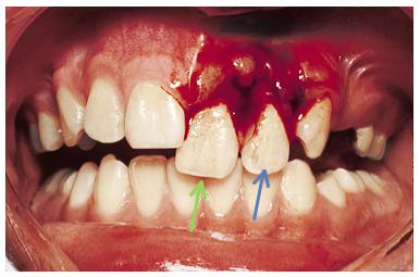 More Dental Emergencies - RCEMLearning