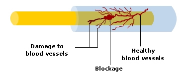 Hereditary sensorimotor neuropathy