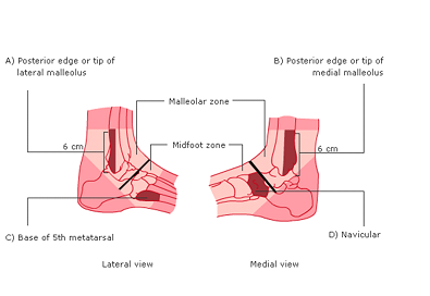 Foot Injuries - RCEMLearning