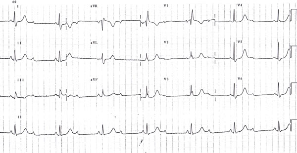 palpitations_atrioventricular