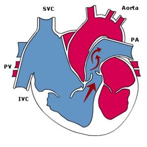 pulmonary_stenosis