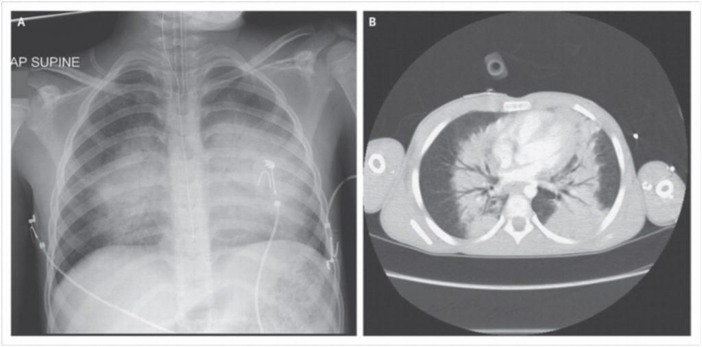 blast-lung