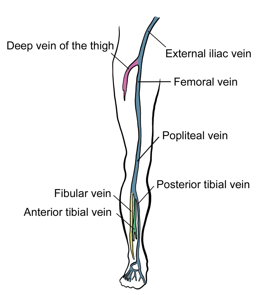 Deep Vein Thrombosis Rcemlearning
