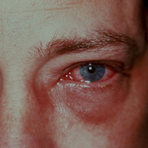 Eye infections - RCEMLearning