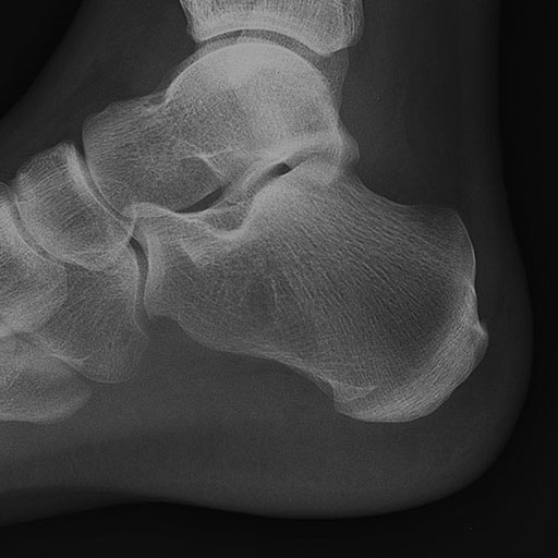 Foot Injuries Rcemlearning