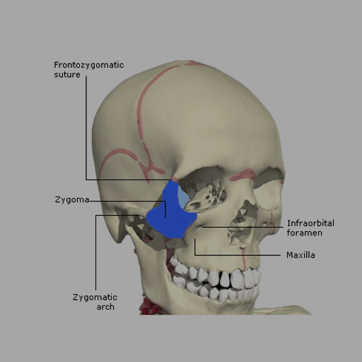 Zygomatic and Nasal Injury - RCEMLearning