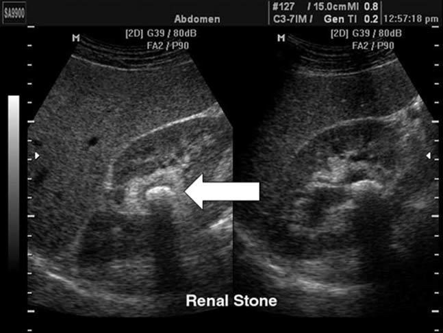 renal_colic_stone