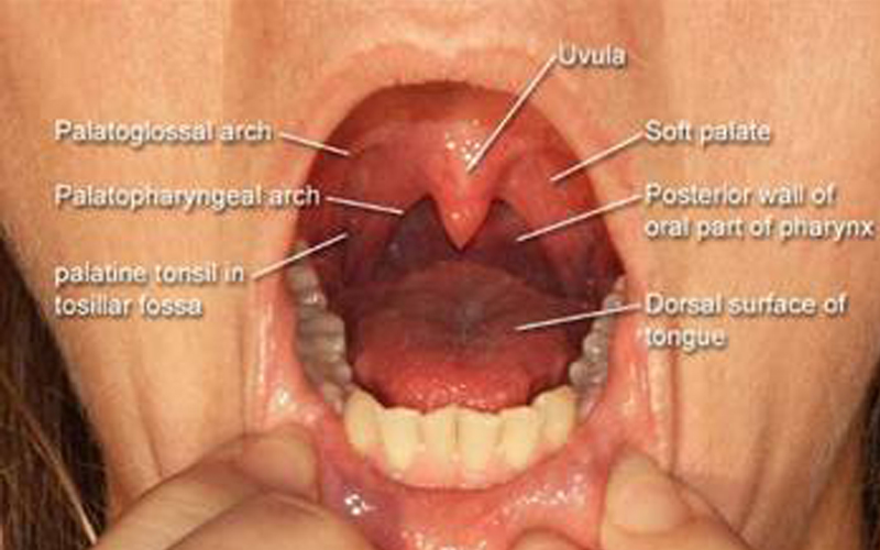 Epiglottic width indicated by arrow