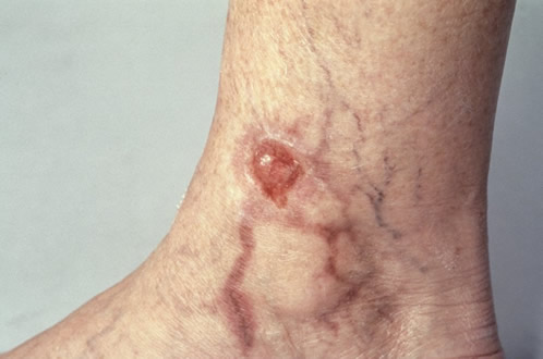 thrombophlebitis_2