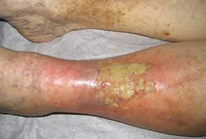 venous_eczema