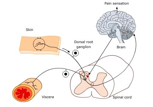 visceral_pain